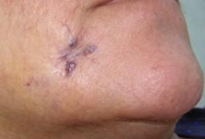 lesion vascular en cara: las posibilidades diagnósticas son múltiples