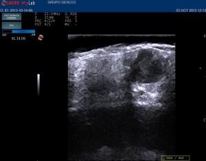 ecografia cutanea melanomaop