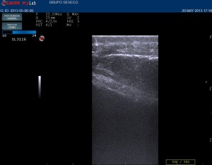 lipoma  ecografia cutanea